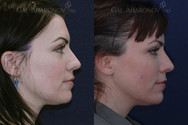 Closed rhinoplasty to refine the nasal tip without affecting the rest of the nose. Some people would like a subtle change in their nasal appearance but are scared of a potentially dramatic result. This patient had a closed rhinoplasty to refine the tip of her nose. She did not want to affect the rest of her nose. Notice how much more balanced her nose appears. From profile, there is very little change in her nose.