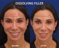 This patient had been recieving filler for years and over time developed a chipmonk face, especially when smiling. I used a combination of dissolving filler and adding filler in other places to create better balance.