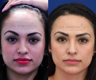 Same patient 10 YEARS after surgery.
