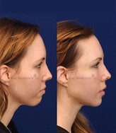 Using filler to augment the chin and jaw. Significant augmentation can be achieved without surgery using only filler injections. The chin is more projected and the jaw is more defined.