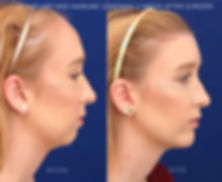 hairline lowering combined with chin implant