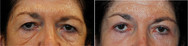 Upper eyelid blepharoplasty and under eye fat repositioning, combined with fat injections.
