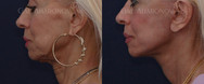 Facelift and necklift.