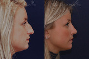 Rhinoplasty for droopy tip and prominent hump. This patient wanted a natural result without looking like she had a nose job. She wanted to maintain a strong nose.