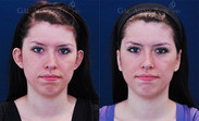 Otoplasty Surgery: This is 2 weeks after surgery.