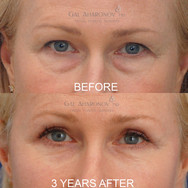 Upper eyelid surgery combined with lower eyelid fat repositioning surgery.