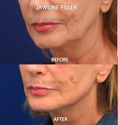 This patient who was the mother of another plastic surgeon, was sent by her sone for facial restoration. Filler was used to restore the shape of her jawline without surgery.