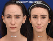 One stage hairline loweirng (FROST) with no additional treatments. Forehead reduction surgery done in one stage with FROST is the best way to have normal hair density at the hairline.