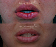 Surgical excision of silicone in lip.