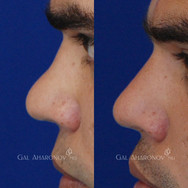 Non Surgical Rhinoplasty using filler to build the bridge higher and making the nose more balanced.