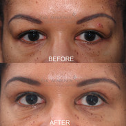 Upper eyelid surgery to reduce hooding of upper eyelids. The reduction does not have to be all or nothing. This is a subtle excision of the upper eyelid to reduce hooding but still keep the eyes looking full.