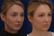 This patient had facial volume loss especially around the eyes and lateral face. She had an upper eyelid asymmetry, jowling, and hollowness under the eyes. Facial filler was used around her eyes, cheeks, jawline, and temples to rebalance her face and widen it. Her eyes look more symmetrical and fresh.