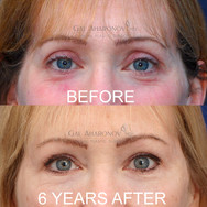 Correction of overly aggressive upper eyelid surgery by adding volume to improve hollowing.