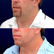 Small incision neck lift with tightening of the neck muscles. There is only a small incision under the chin.