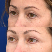 This patient had a previous upper eyelid surgery which she felt hollowed her out and gave her asymmetric creases. Filler was injected to try to even out the creases and give her back some of her old upper eyelid volume.