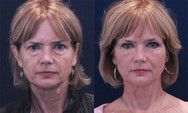 This patient had facial volume loss associated with aging. Her face flattened and narrowed leading to the balance of her face being shifted downwards to her mouth area as opposed to her eyes. Facial filler was used around her eyes, cheeks, and temples to rebalance her face and widen it. Notice even though we have yet to address her laugh lines and lower face she looks much more refreshed and youthful. Facial shape is a much larger contributor to youthfulness than lines.