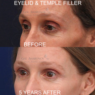 Correction of intraorbital fat loss and temple fat atrophy with filler. Filler was injected into the intraorbital space to reduce the cavitation seen in the before photo. This is 5 YEARS after treatment.