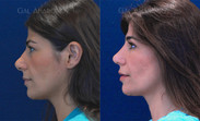 Revision rhinoplasty combined with fat injections to the cheeks. This patient had a hard time breathing from her nose as well as major deformities to her internal cartilages.