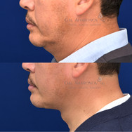 Direct midline necklift with excision redundant neck skin, muscle, and fat. This is about 1 month after surgery.