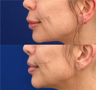Surgical upper lip lift to shorten the distance between the nose and the upper lip. The incision is still healing but will slowly fade away with time. A surgical lip lift also creates a significant shortening in the length of the face.
