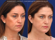 Rhinoplasty combined with a chin implant and a minimal incision necklift.
