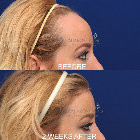hairline-lowering-surgery-recovery-foreh