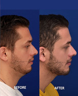 Angle of the mandible implants and a vertical lengthening chin implant combined with neck liposuction to create a more structured lower face and neck. This is about 2 months after surgery. Angle of the mandible implants are also known as jaw implants. The jaw implants are placed on the jaw bone through a small incision inside the mouth. The chin implant and liposuction are performed through a small incision under the chin.