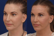 This patient's main concern was that she felt that her face was unbalanced due to some previous treatments she had somewhere else. She felt that she was not looking like her younger self. Facial filler was used around her eyes, jawline, and temples to rebalance her face making her look more youthful. Her eyes look more symmetrical and fresh.