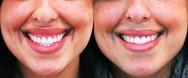 Gummy smile treatment with neurotoxin