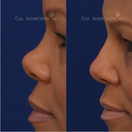 Non Surgical Rhinoplasty building the bridge and lowering the tip of the nose with filler to create a more balanced nose.