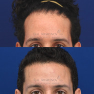 This patient had prior hair grafting at another clinic to try to lower his hairline. The results ended up not looking natural, with thin, poor texture hair. He had a revision hairline lowering to cut out the poorly healed hair grafts. His new hairline looks thicker and more natural.