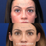 This patient has been coming to our clinic for 9 years. She has had under eye filler with very occasional touch ups. Here she is 9 YEARS after her initial treatment, and without any touch ups in over 3 YEARS.