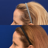 Hairline lowering surgery combined with a brow lift.