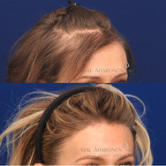 This patient was scared about having a visible scar so she choose to undergo hair grafting with another doctor. She spent over 2 years getting multiply treatments and spent tens of thousands of dollars on hair grafting. She was left with hair that had a poor texture match and did not grow in long or dense enough. She underwent a revision hairline lowering surgery where her original hairline was brought down and the hair grafts mostly removed. This was done in one stage.