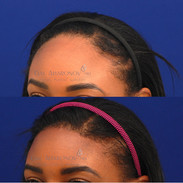 One stage hairline lowering.