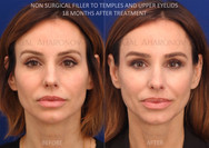 This woman's concern was that she felt that she was looking tired and gaunt. I used filler to restore her temples and the lost upper eyelid volume. This is 18 months after treatment to demonstrate how long lasting filler can be in these locations.