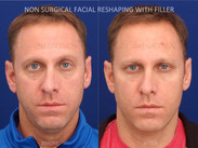 This gentleman complained about looking tired and older. Filler was used to restore the shape of his eye and change it from a round shape to an almond shape. Filler was also placed along his jawline to lift his neck. You can see how is double chin has been reduced.