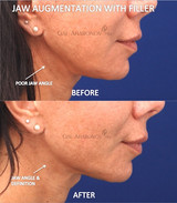 Volume restoration of the angle of the jaw using filler.