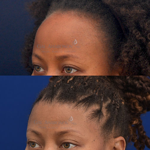 hairline lowering surgery forehead reduction in one stage
