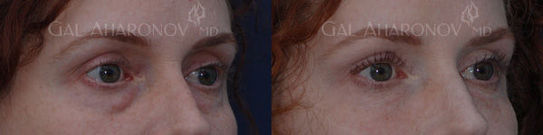 under_eye_bags_treatment_juvederm_los_an