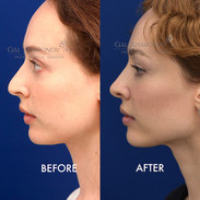 This already beautiful woman did not like the appearance of her nose. She wanted refinement, without making the nose too petite. Here she is about 6 months after her rhinoplasty.