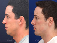 Jaw implants otherwise known as angle of the mandible implants combined with a chin implant, tip rhinoplasty to reduce the bolbousness of the tip, and otoplasty. Filler was also placed around the face for increased balance and harmony. This man wanted to look like a more balanced masculine version of himself. This is 3 years after surgery and immediately after filler injection.