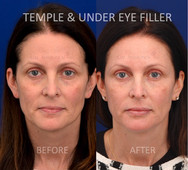 Using filler to fill the temples and under eye area to help with dark circles.