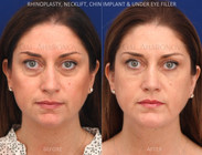 Chin implant combined with a necklift and a rhinoplasty.