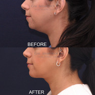 Chin implant and submental liposuction to create more chin projection and remove some of the fat in the neck.
