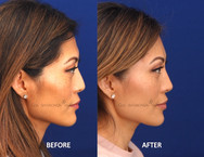This patient had facial volume loss which left her feeling that her face is flat and harsh. Filler was used to restore softness and projection of the face.
