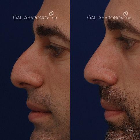 rhinoplasty_nosejob_los_angeles_male_rhi