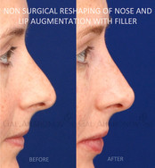 Non Surgical Rhinoplasty for a patient with a polybeak deformity and tension in the tip of the nose with slightly droopy tip. This patient classically would have only been a surgical rhinoplasty candidate. Filler was used to reshape the nose and make it look smaller, straighter, and with a more lifted tip. Lip augmentation with filler was also performed to give her fuller lips.