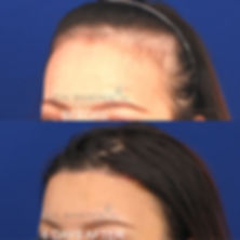 tissue-expander-hairline-lowering-surger