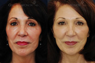 This is an example of a woman with very high big natural cheekbones and what happens when we age. Volume loss around the cheek and temple actually causes the cheek to look bigger and artificial. Filler was already placed under her eye at this point. Filler was then used to fill in her temples, upper eyelids and eyebrows, as well as under her cheek bone. Notice that she does not look as gaunt and her face looks more balanced.